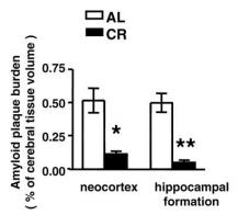 Amyloidplack för AL och CR