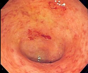 ulcero%cc%88s-colit