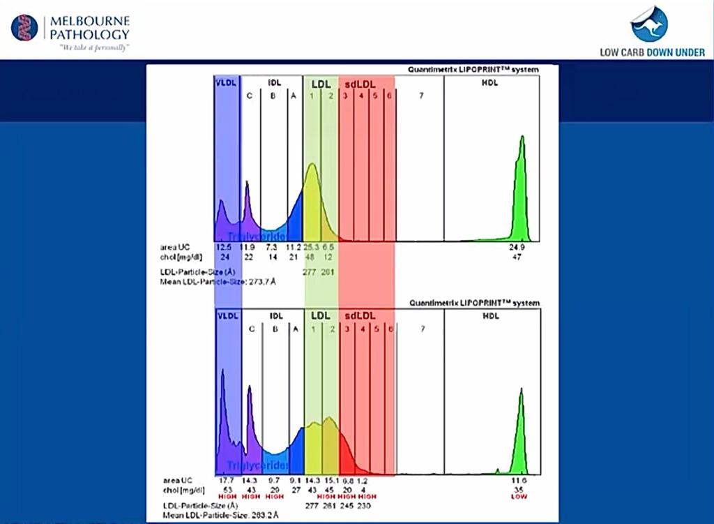 Fördelning av lipoproteiner i två olika blodprov, analyserade med Lipoprint-metoden, HDL är det ensamma längst till höger